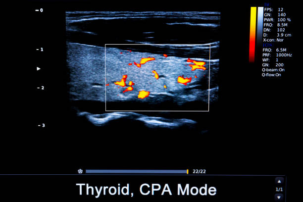 Thyroid CPA Mode