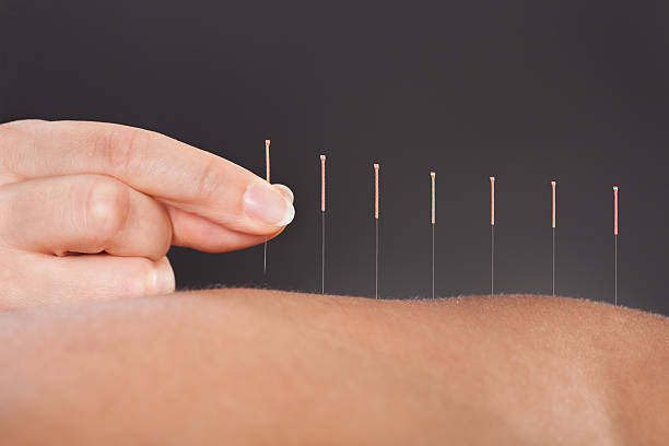 Reducing breast cancer related fatigue with acupuncture