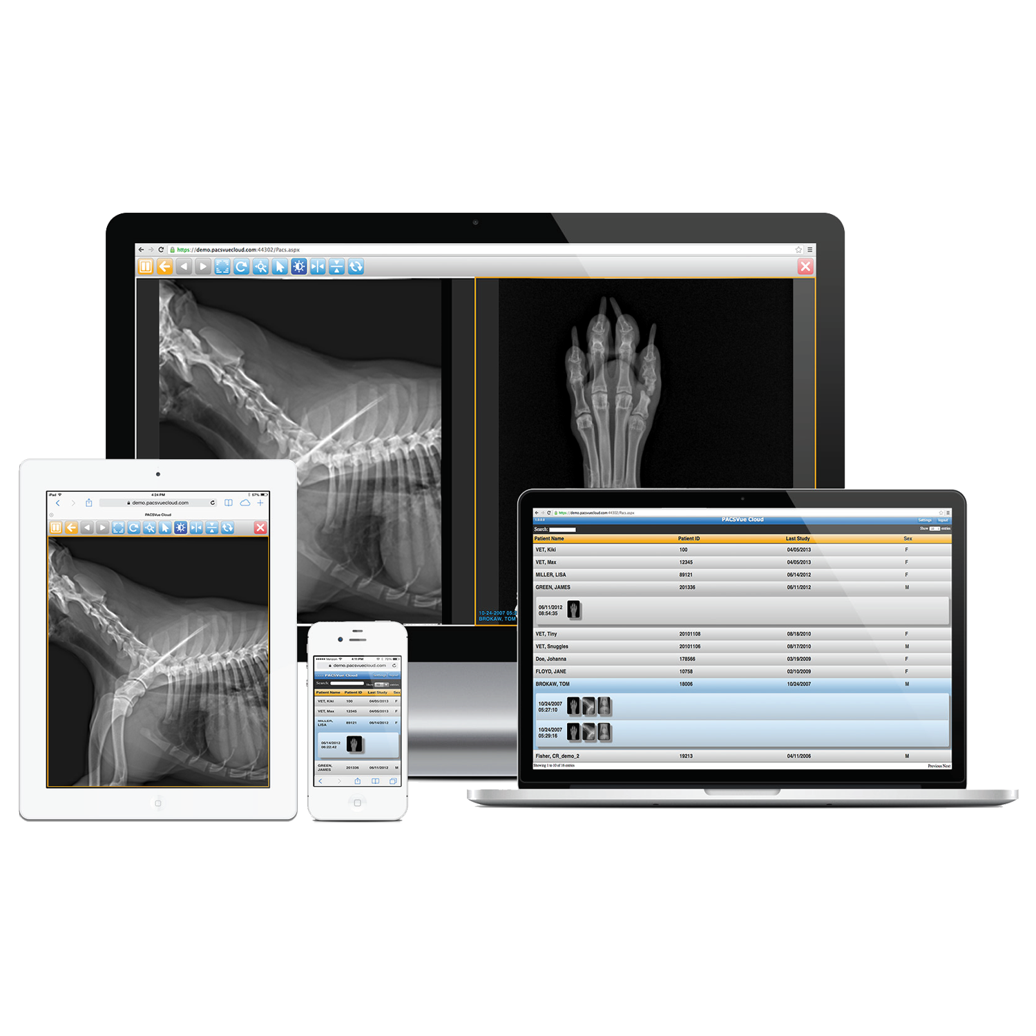 AccuVue X-Ray Software