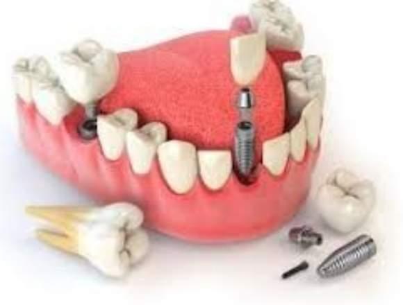 Mecánico Dental ....