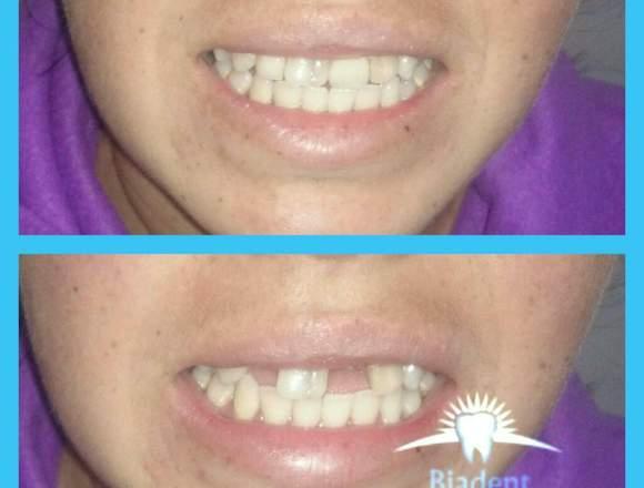 Prótesis dental todo tipo elaboramos