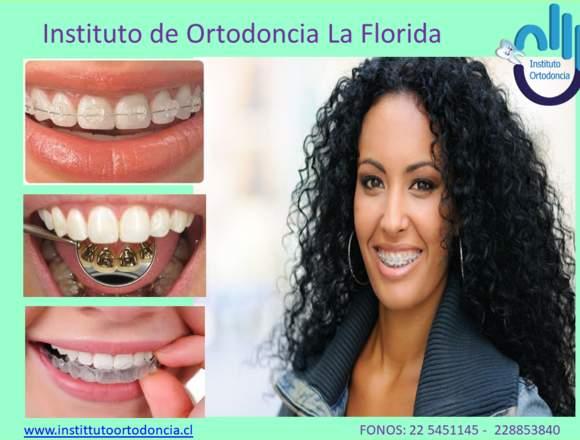 Ortodoncia en Santiago