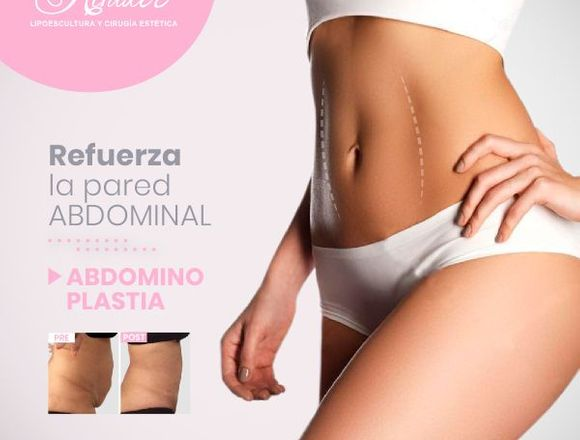 Luce un abdomen perfecto - Clínica Renacer