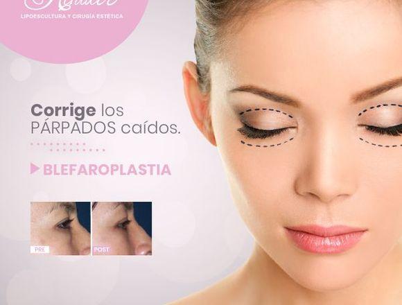 Remueve las bolsas de los ojos - Clínica Renacer
