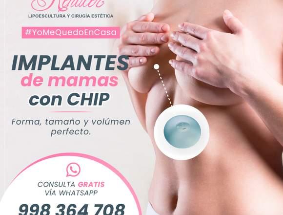 Nuevos implantes mamarios