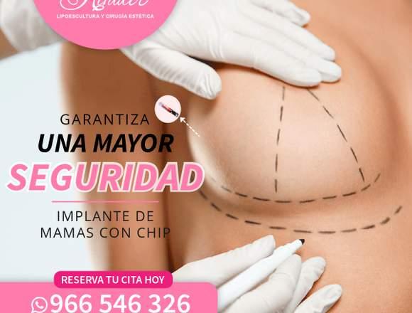 Nuevos implantes mamarios con chip.