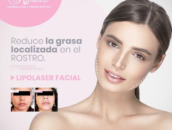 Elimina la grasa facial - Clínica Renacer