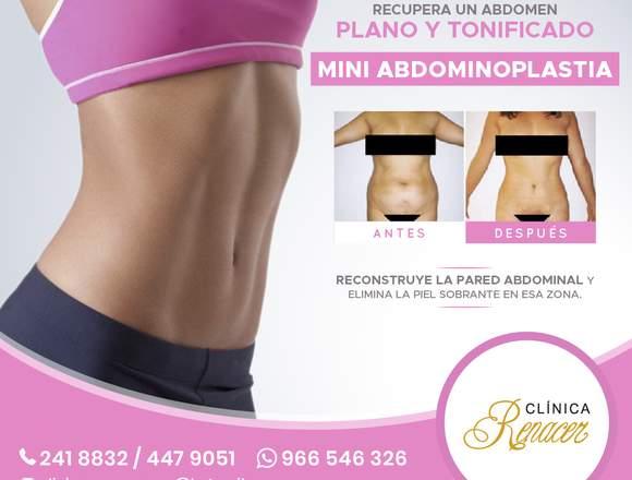 Minireconstrucción abdominal - Clínica Renacer