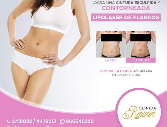 Libre de grasa en los laterales - Clínica Renacer