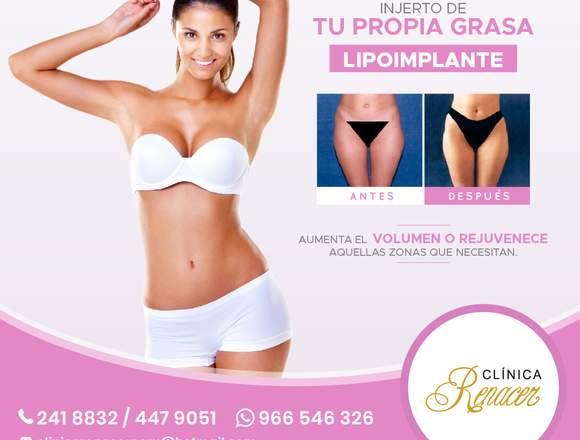 Lipoimplante - Clínica Renacer