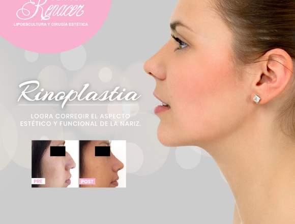 Remodela la forma de tu nariz - Clínica Renacer