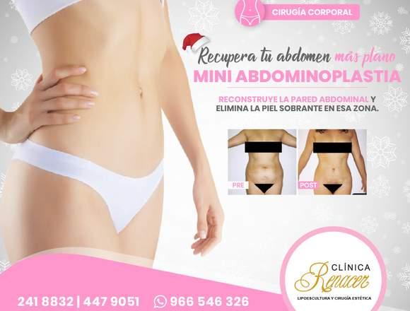 Minilipectomía abdominal - Clínica Renacer