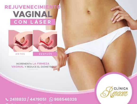 Tensa el músculo vaginal - Clínica Renacer