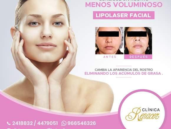 Reduce la grasa del rostro - Clínica Renacer