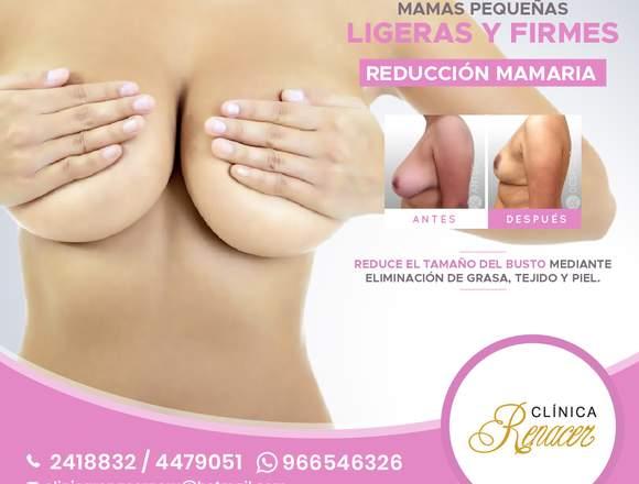 Cirugía de reducción de mamas - Clínica Renacer
