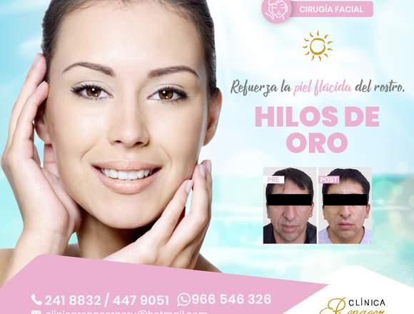 Hilos tensores faciales - Clínica Renacer