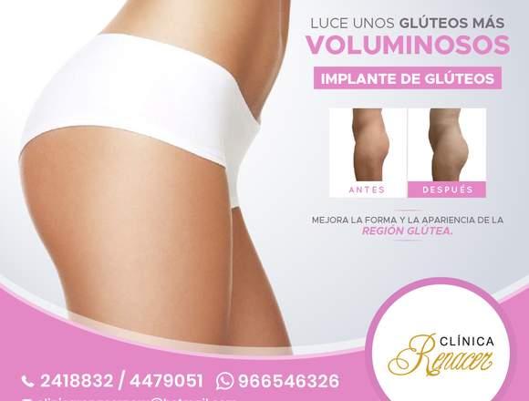 Gluteoplastia de aumento - Clínica Renacer