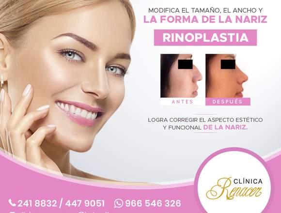 Rinoplastia, cirugía de nariz - Clínica Renacer