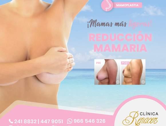 Reduce el volumen mamario - Clínica Renacer