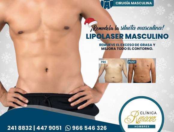 Lipolaser Masculina - Clínica Renacer