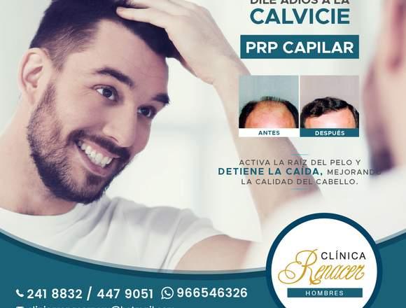 PRP contra la Alopecia - Clínica Renacer