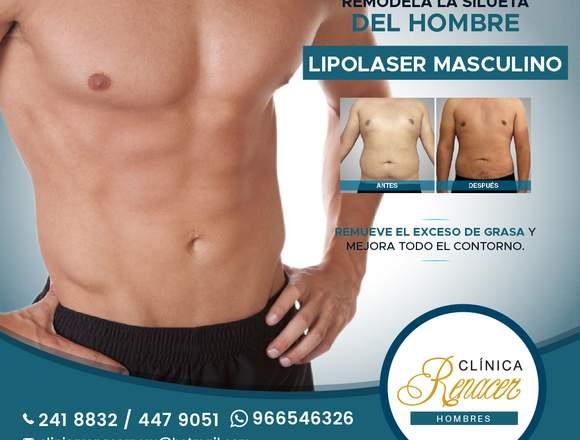 Lipolaser hombres - Clínica Renacer