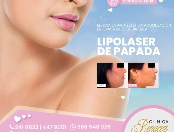 Elimina la papada con lipolaser - Clínica Renacer