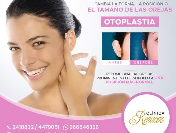 Cirugía estética de orejas - Clínica Renacer
