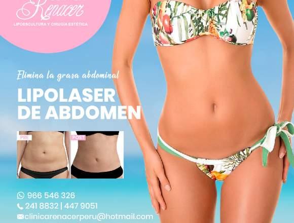Lipolaser en abdomen - Clínica Renacer