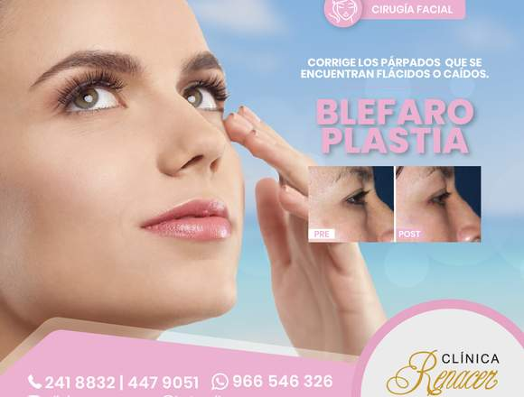 Elimina las bolsas en los ojos - Clínica Renacer