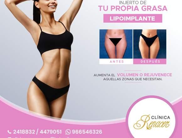 Lipoimplante injerto de tu grasa - Clínica Renacer
