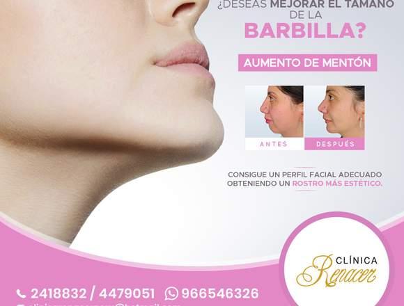 Cirugía Mentoplastia - Clínica Renacer