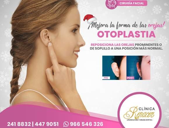 Reubica las orejas prominentes - Clínica Renacer