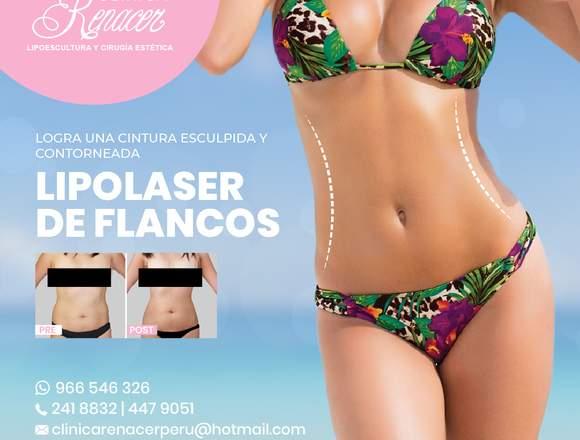 Lipolaser de flancos - Clínica Renacer