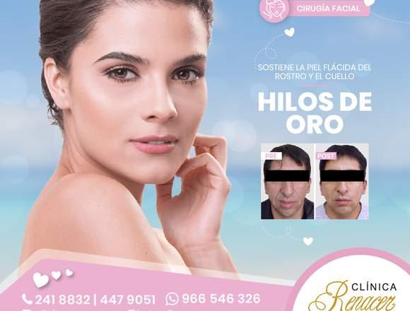 Reposición facial con hilos - Clínica Renacer