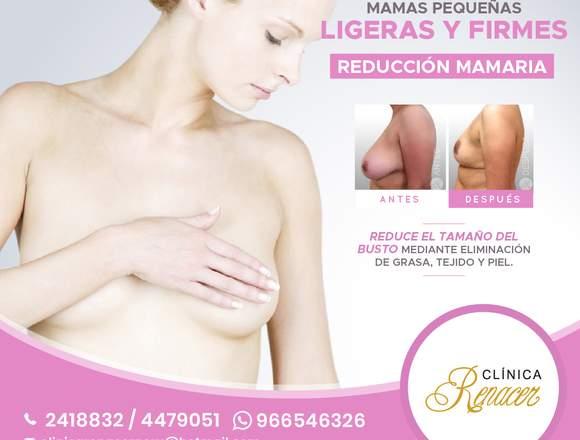 Cirugía de reducción mamaria - Clínica Renacer
