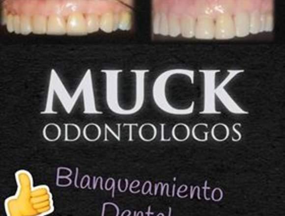 Blanqueamiento Dental. Promocion!!!