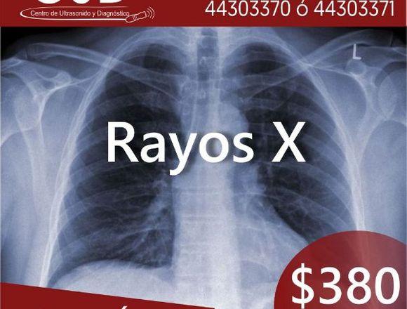 """Promociones Ultrasonidos y Rayos """"X"""""""