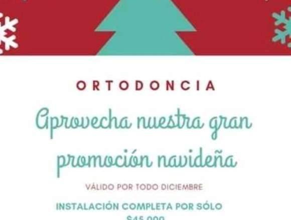 Ortodoncia promocion DICIEMBRE