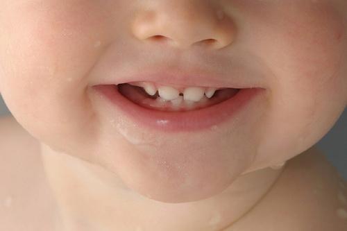 gigi-bayi