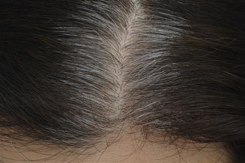 Gray hair solutions