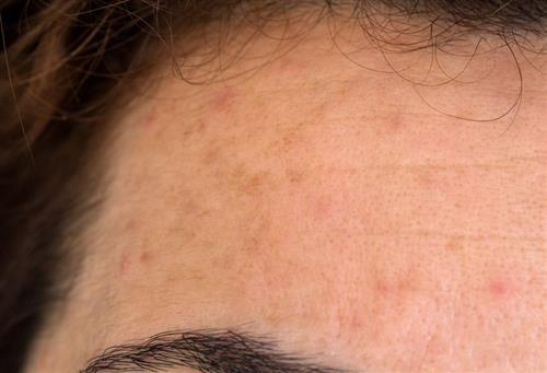 Glycolic acid mask for hyperpigmentation