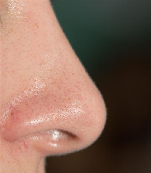 blackheads on nose