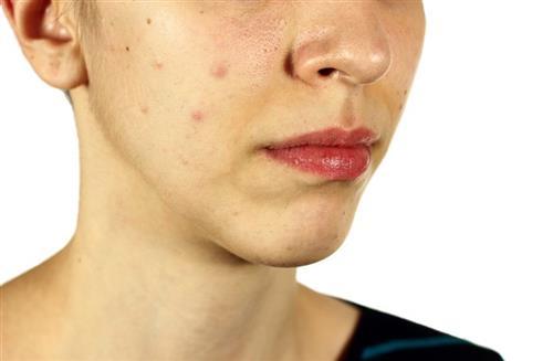 Evening primrose for acne