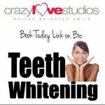 #1 Teeth Whitening Inc.