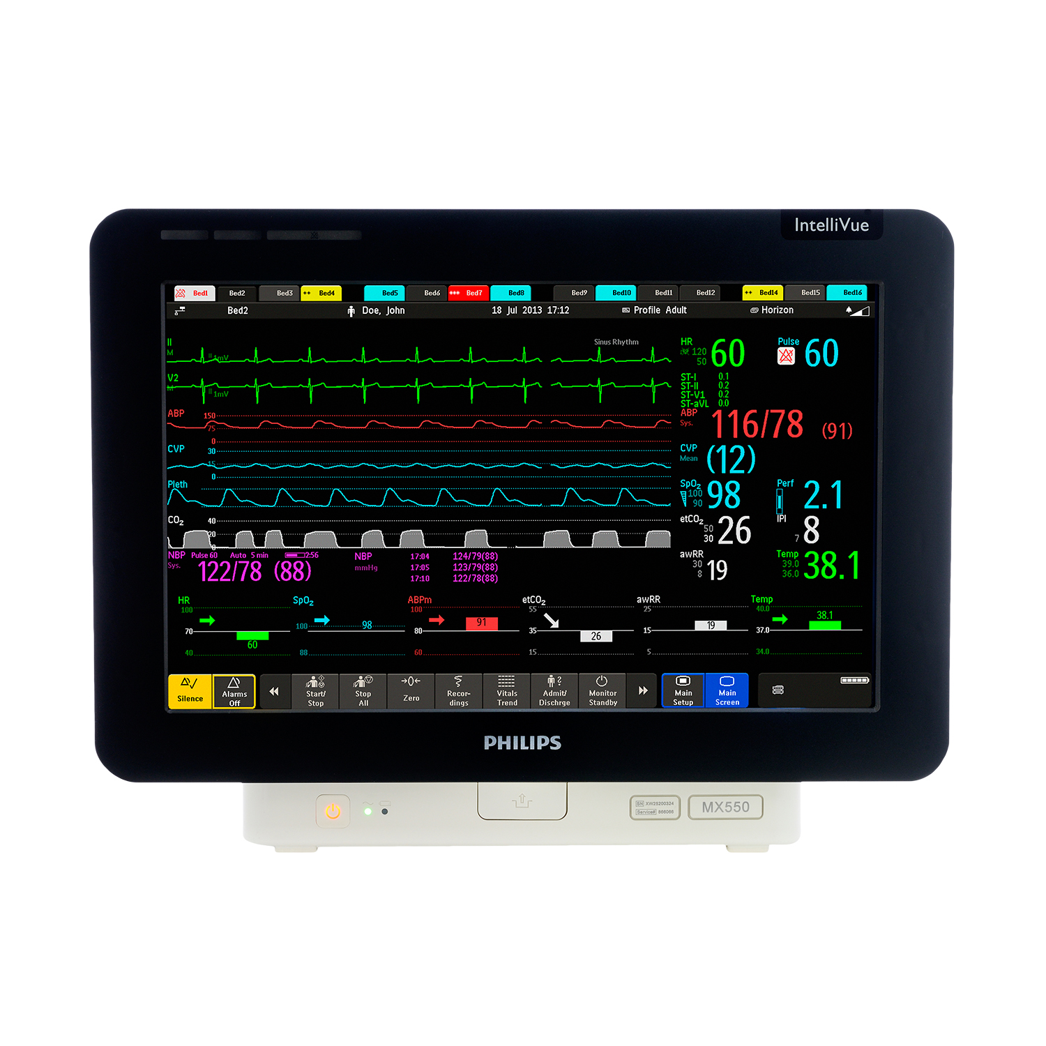 Philips IntelliVue MX550 Patient Monitor