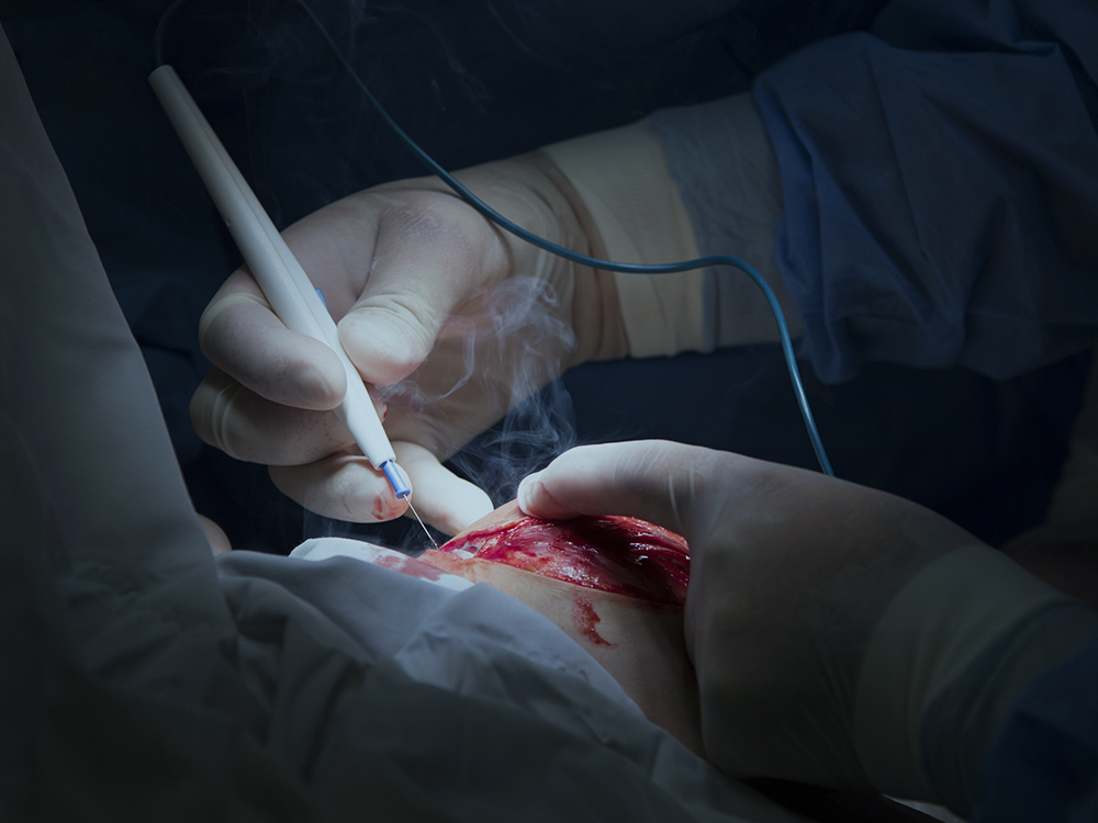 Tips for Managing Surgical Smoke in Your Operating Room
