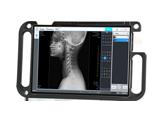 Software de adquisición de rayos X