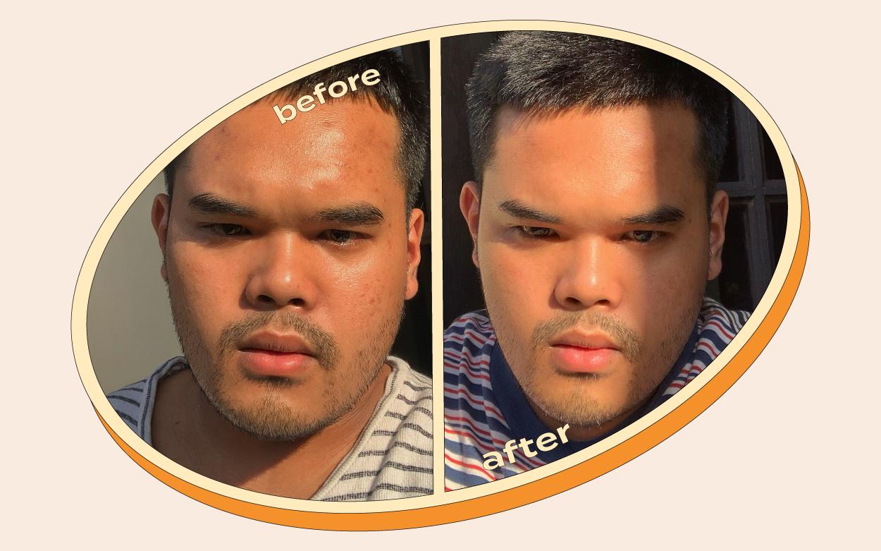 Harris' Skin Journey: Skincare Rutin Untuk Kamu yang Susah Hilangin Bekas Jerawat