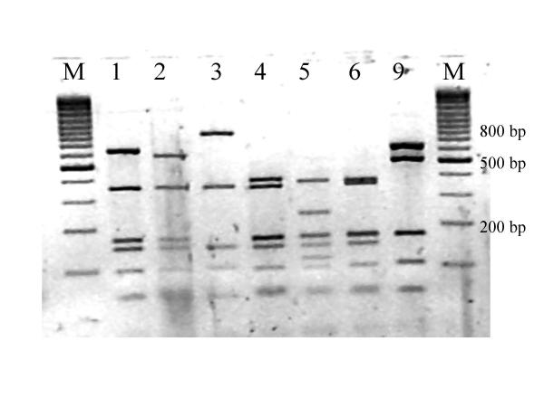 Rsa I restriction patterns of amplified mycobacterial 16S rRNA genes. Legend: M: marker (100 base pair ladder, Fermentas, Vilnius, Lithuania)